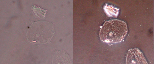 The same cells imaged with traditional bright field microscopy (left) and with phase contrast microscopy (right).