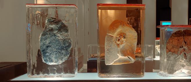 Anatomical specimens Inside out