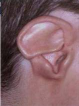 Typical CHARGE ear