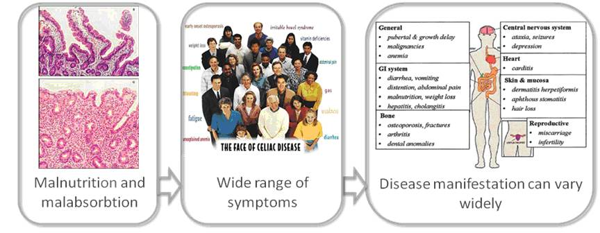The wide-ranging effects of coeliac disease