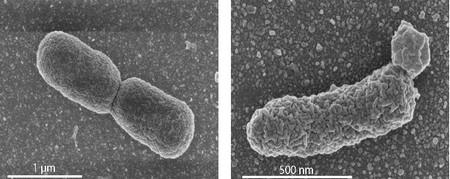 In the left panel: EM image of a normal dividing E. coli cell. Right panel: an engineered cell with high archaeal lipid production, showing lobular irregularities in the cell membrane. | Photo's University of Wageningen / Van der Oost laboratory